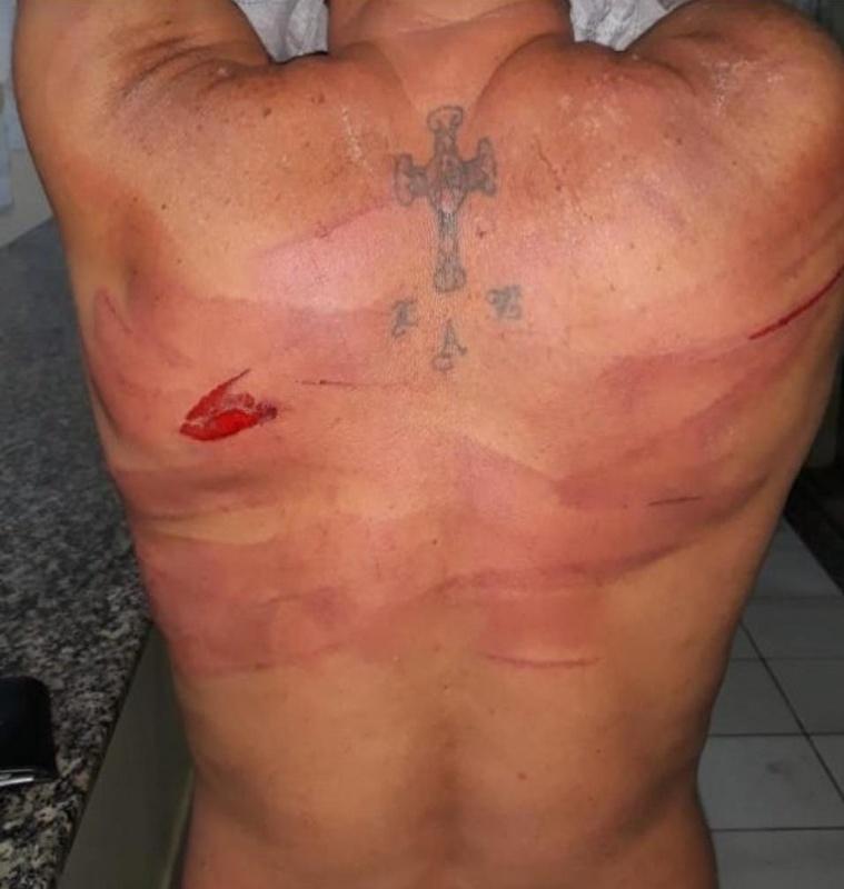 pacaraima venezuelanos agredidos
